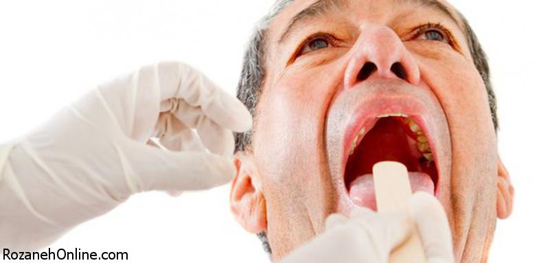 ارتباط بیماری آلزایمر با دندان