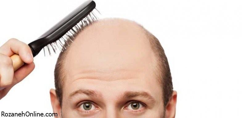 ارتباط ریزش موی زودرس با مشکلات پروستات