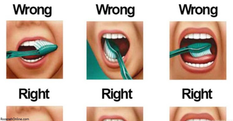 راه درست مسواک زدن دندانها