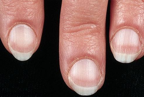 بیماری مربوط به ناخن های نرم