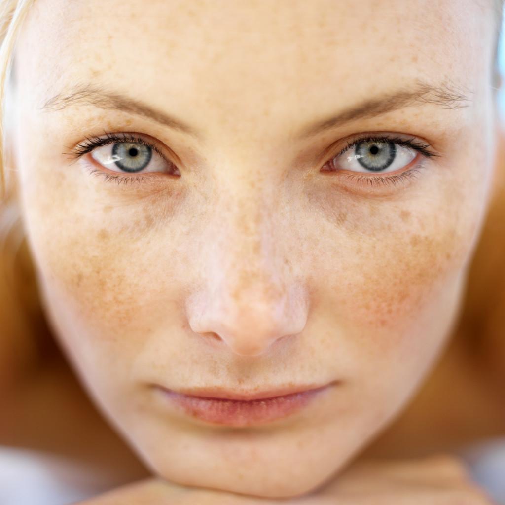 سه ماده طبیعی بسیار مفید برای درمان لکه های پیری پوست