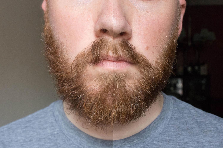 آیا مکمل بیوتین برای پرپشت کردن ریش ها موثر است؟