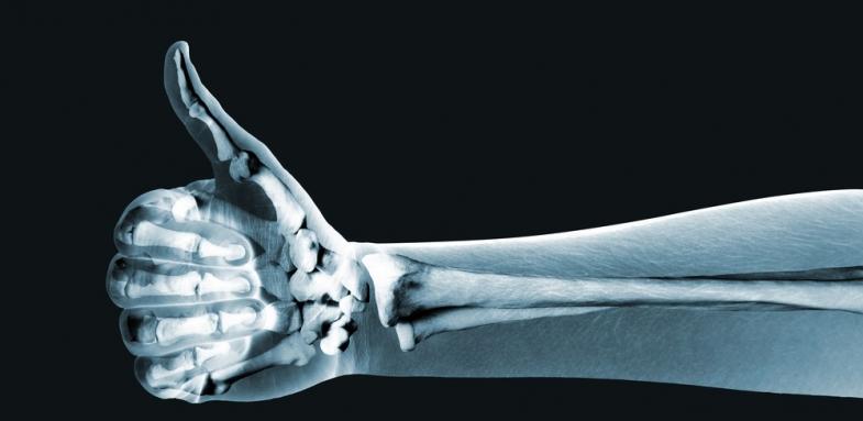 کنترل قند خون برای افزایش سلامت استخوان