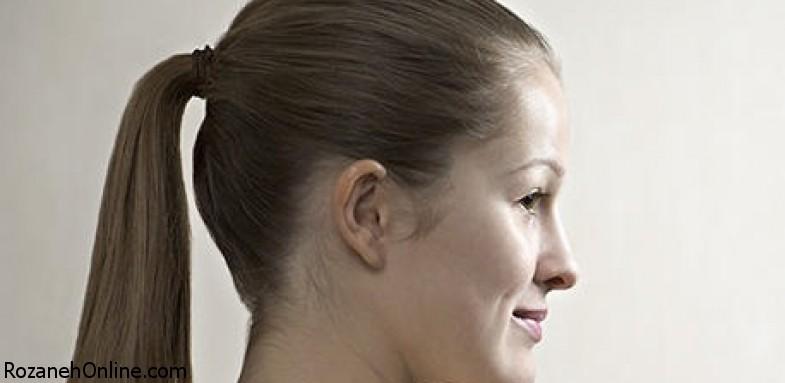 از ریزش موی کششی چه میدانید؟