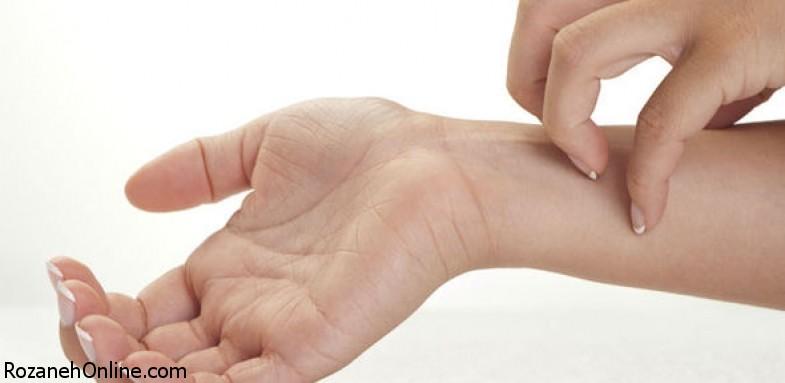 راهکارهایی برای رفع اگزمای پوستی