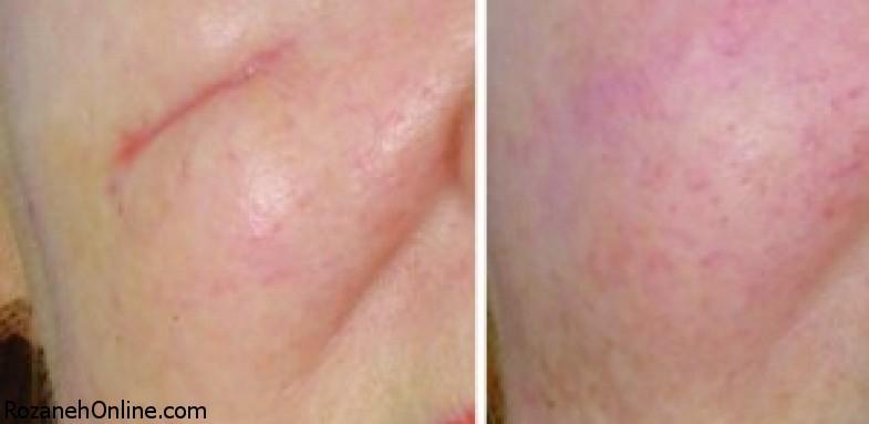 درمان به موقع  اسکار پوستی