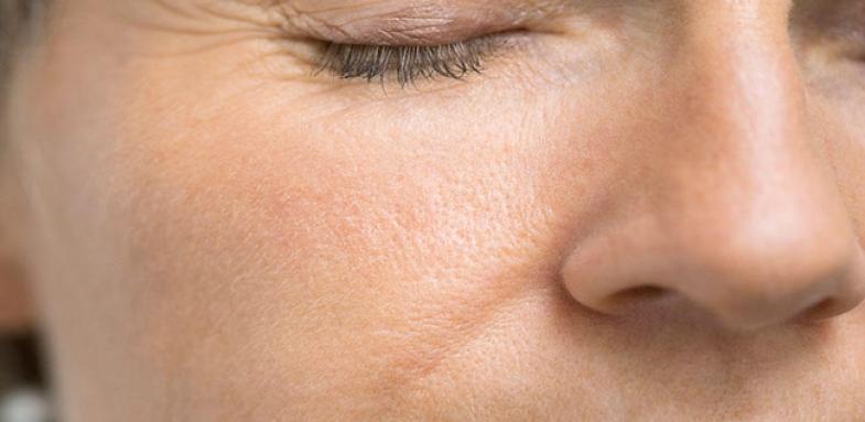 تخریب پوست با عوامل محیطی