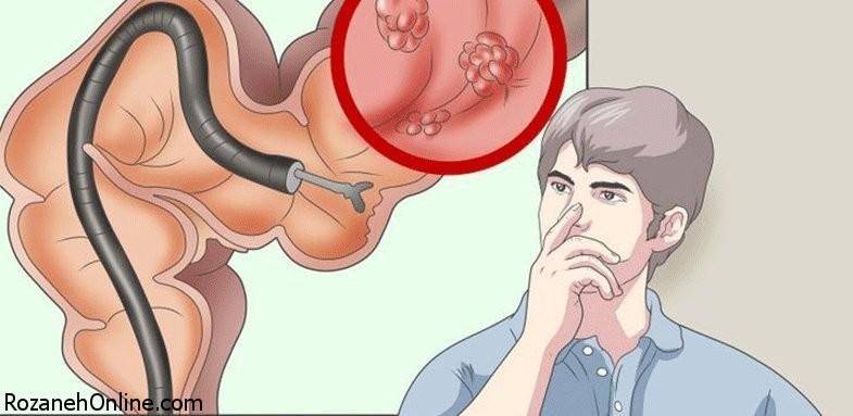 هراس بیماران از انجام کولونوسکوپی
