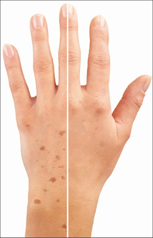 با آبلیموی تازه و آلوئه ورا لکه های پیری را از بین ببرید-درمان طبیعی لکه های پیری