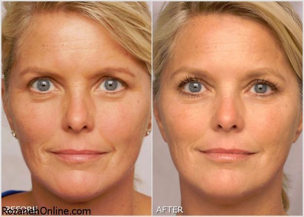 رتینوئیدها و بازسازی پوست