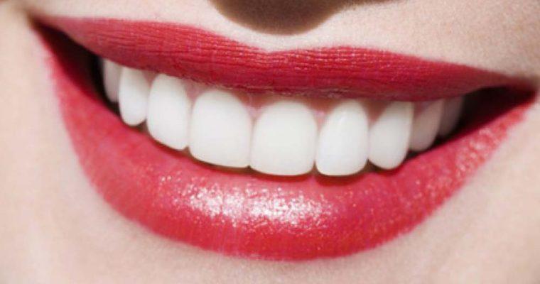 اصول حفاظت از دندان های حساس