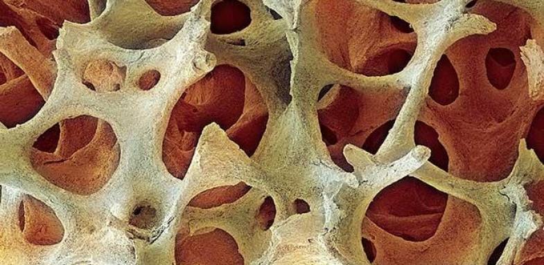 تاثیر ویتامین K۲ بر استخوان سازی
