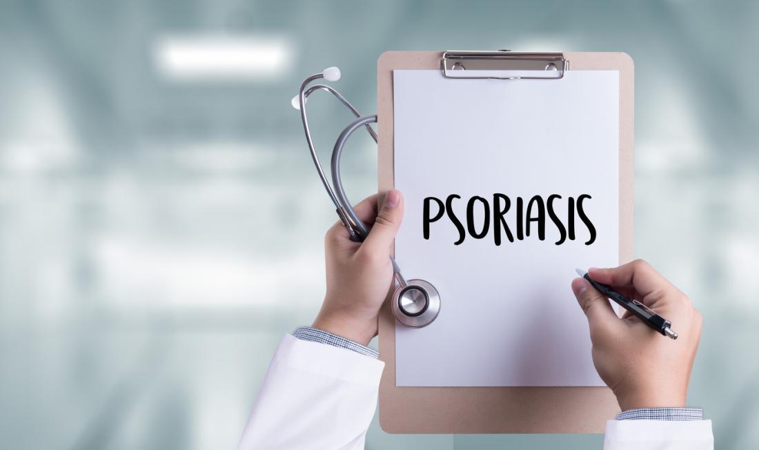 شدت پسوریازیس می تواند بر روی خطر ابتلا به دیابت نوع 2 تاثیر بگذارد
