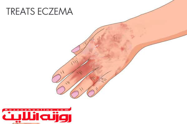 درمان اگزما و پسوریازیس با استفاده از زردچوبه