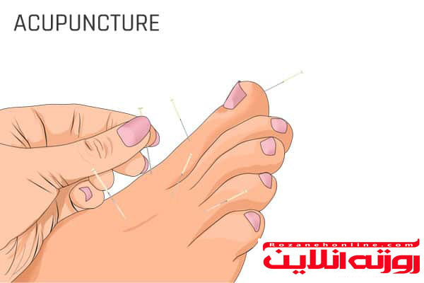 درمان های سالم خانگی برای آرتریت انگشتان پا