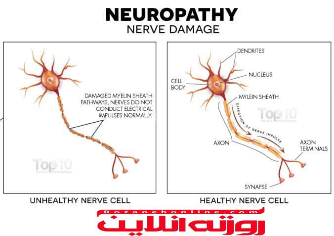 کاملترین توضیحات در مورد علائم و نشانه های آسیب عصبی