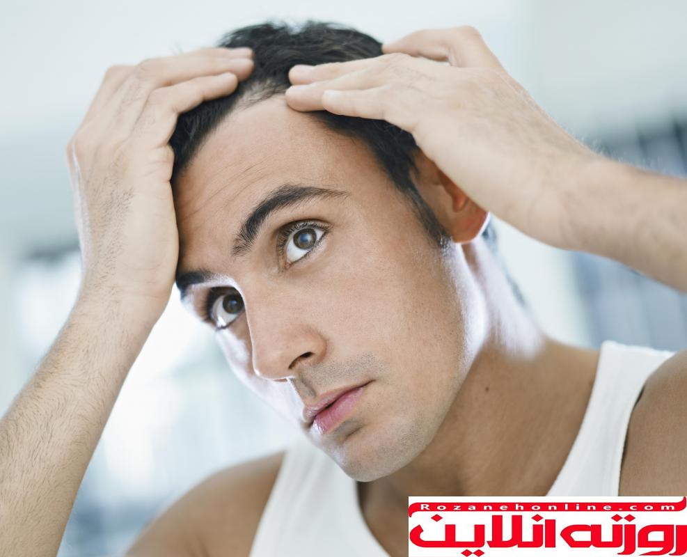 چگونه از روغن نارگیل برای درمان شوره سر استفاده کنیم؟
