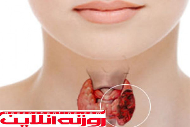 آیا بیماری تیروئید می تواند درمان شود ؟