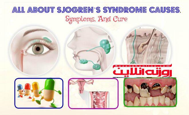 توضیحات کامل درباره تعریف بیماری سندرم شوگرن